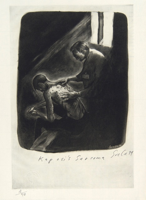 "Sue Coe, ""Kaposi's Sarcoma,"" 1994, 13 x 9 1⁄2 in. Photo-etching on paper. Pomona College Collection. Museum purchase with funds provided by the Estate of Walter and Elise Mosher."