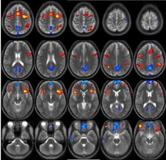 MRI_image.jpg