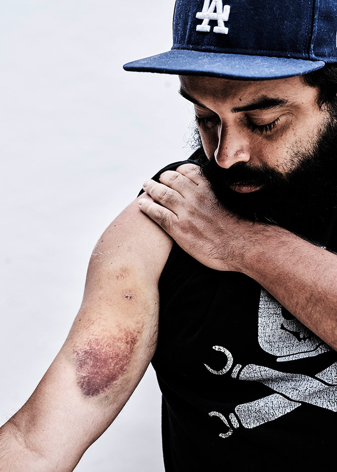 Daniel Chavez was shot in the arm and in the back of the head while filming LA County sheriffs deputies launch tear gas at peaceful protestors. The rubber bullet to his head hit the rim of his cap. | Shayan Asgharnia