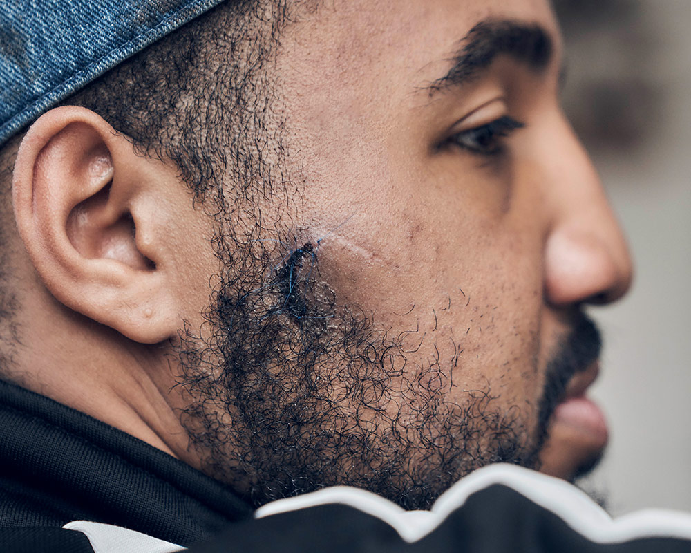 Detail of Deon Jones' fractures on his face after police violence during protests. | Shayan Asgharnia