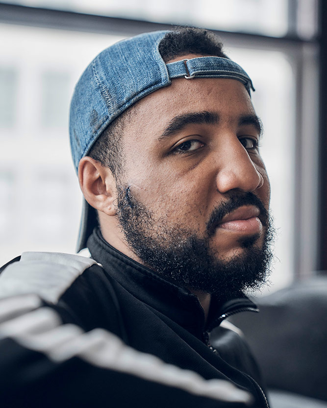 Deon Jones suffered two fractured bones in the back of his cheek and below his temple after police hit him with batons and shot him with rubber bullets. | Shayan Asgharnia
