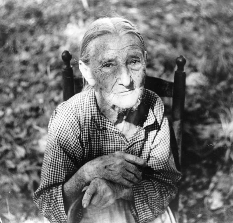 An elderly pellagra sufferer in Orange County, NC, ca. 1939.