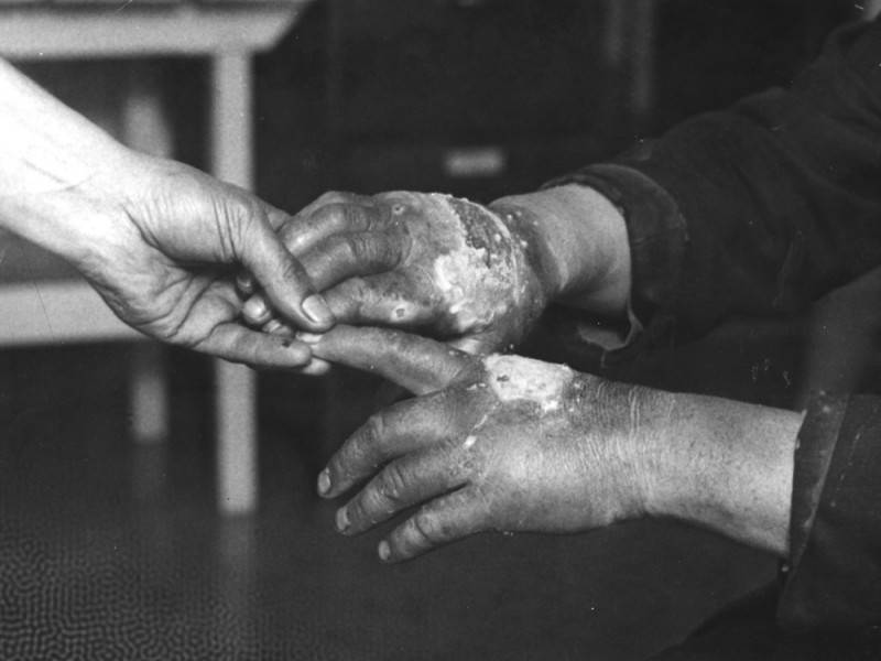 A victim showing effects of benzine blisters to clinic attendant | Herald Examiner Collection of the Los Angeles Public Library
