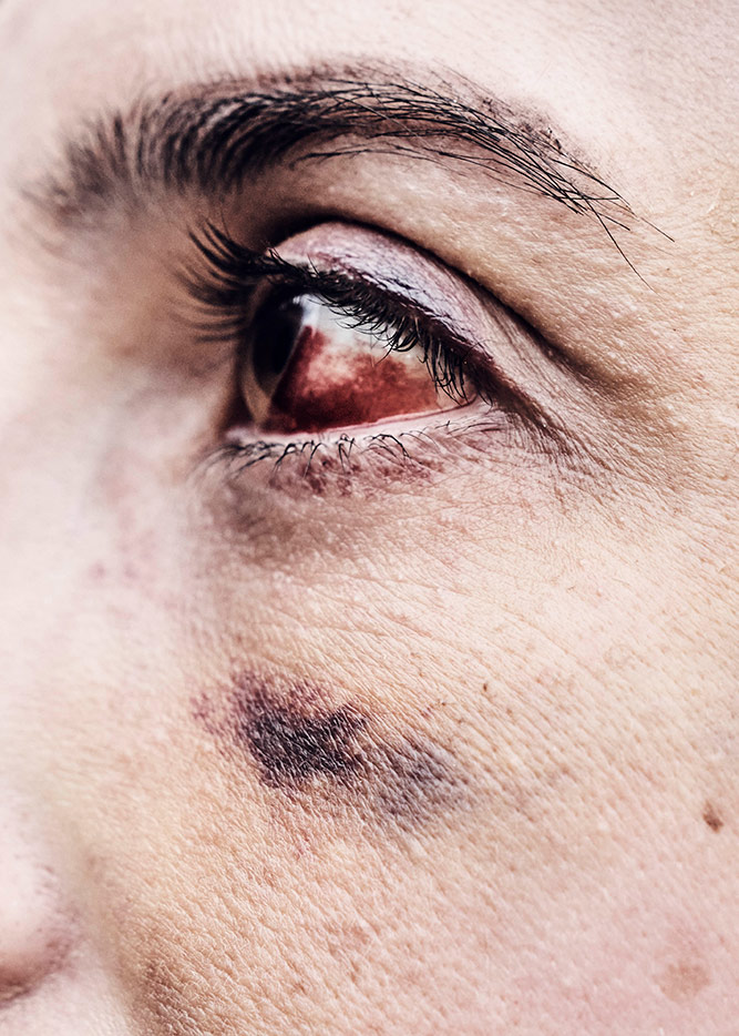 Rachel's bloody eye in shown in detail. She participated in a Black Lives Matter rally.   Shayan Asgharnia