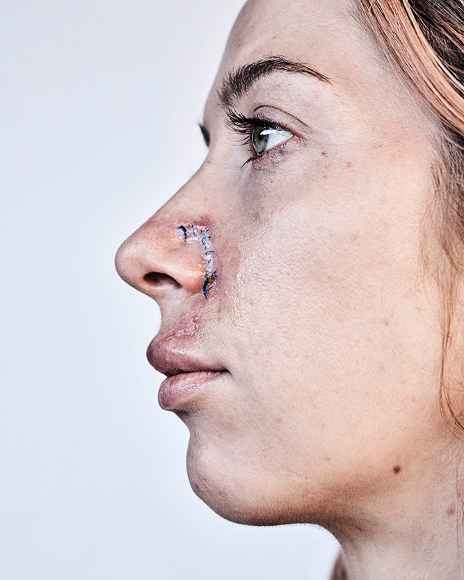 Trish Hill, who had her hands up in the air, had to get stitches on her nose after being shot in the face with a rubber bullet by police. | Shayan Asgharnia